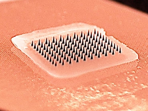 <p>This close-up image shows a microneedle array containing influenza vaccine. When pressed into the skin, the tiny needles dissolve, carrying vaccine into the skin. A majority of study participants said they would prefer to receive the influenza vaccine using patches rather than traditional hypodermic needles.</p>